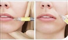 Plasma PRP y plasma gel rejuvenece la piel